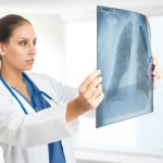 cancer-myths