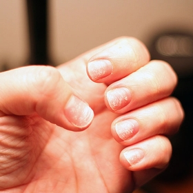 iron-deficiency-nails
