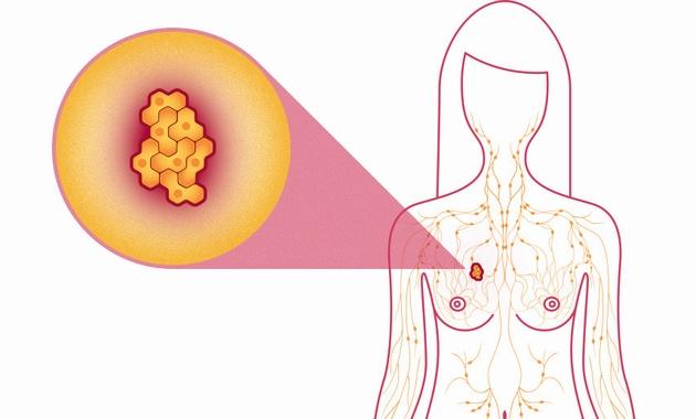 metastatic-breast-cancer