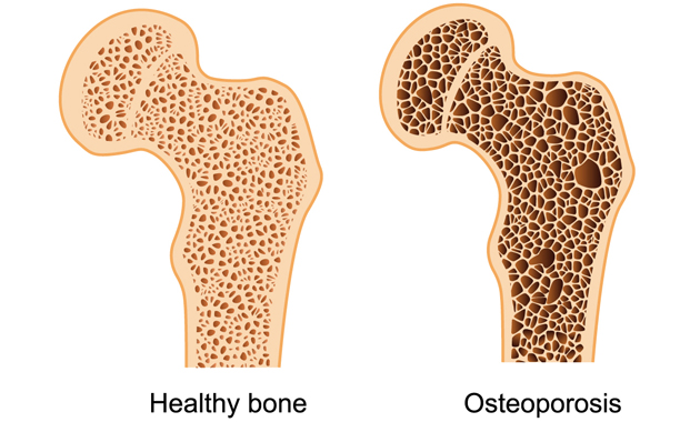 osteoporosis-causes-and-prevention