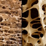 osteoporosis-and-intake-of-carbohydrates