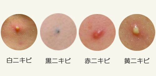 adult-acne-2