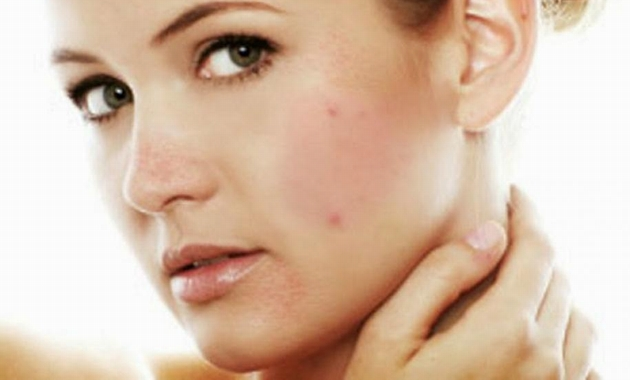 adult-acne-remedies