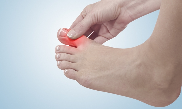 gout-causes