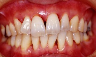 periodontal-disease-causes-and-prevention