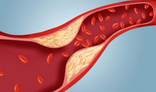 what-causes-damage-to-blood-vessels