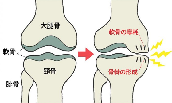 knee-cartilage