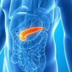pancreatitis-symptoms-causes-prevention