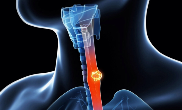esophageal-cancer-symptoms-causes-prevention